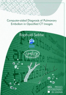 Computer-aided Diagnosis of Pulmonary Embolism in Opacified CT Images